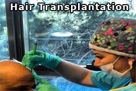 hair_transplantation_1