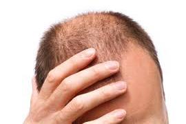 hair_transplantation_24